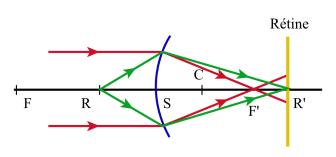 Un oeil est myope si son foyer image F  est situé lorsqu il est au repos en  avant de la rétine. fb12df14b0ab
