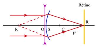 On corrigera un oeil myope en lui permettant de voir nettement sans  accommoder un objet à l infini. On placera au sommet S du dioptre une  lentille ... 0a7d7642f06e